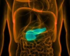 A hasnyálmirigy rák – tünetek és megelőzés